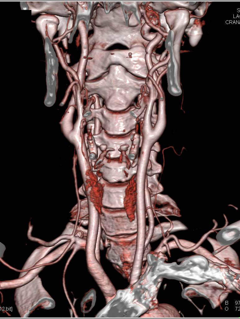 Normal CTA of the Head and Neck - Neuro Case Studies - CTisus CT ...