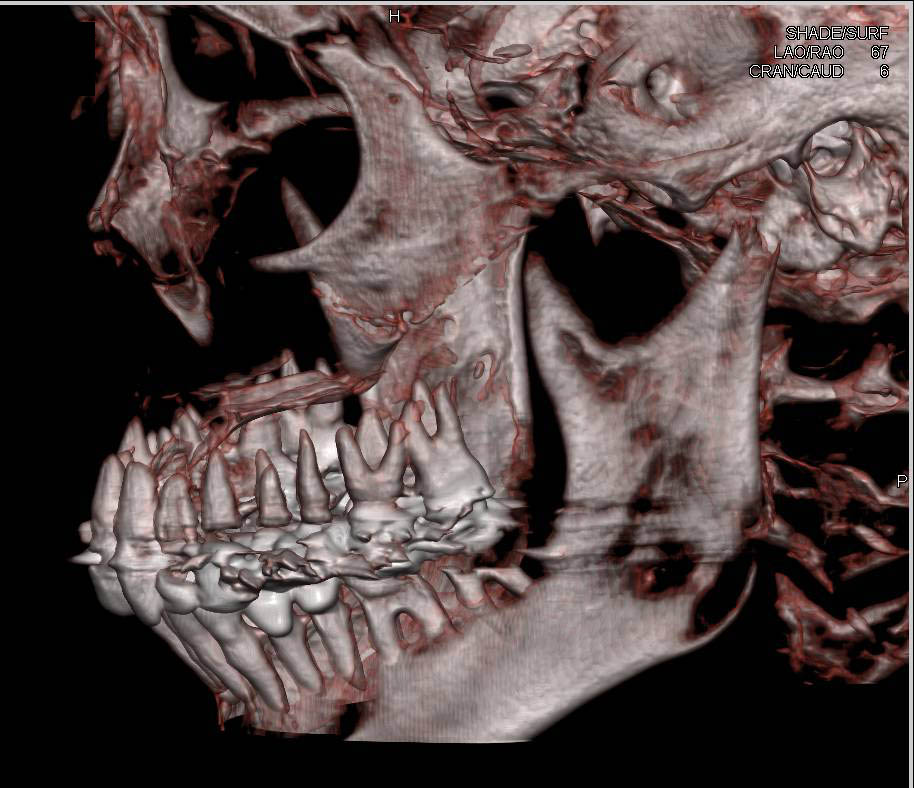 Craniofascial CT with 3D Volume Rendering
