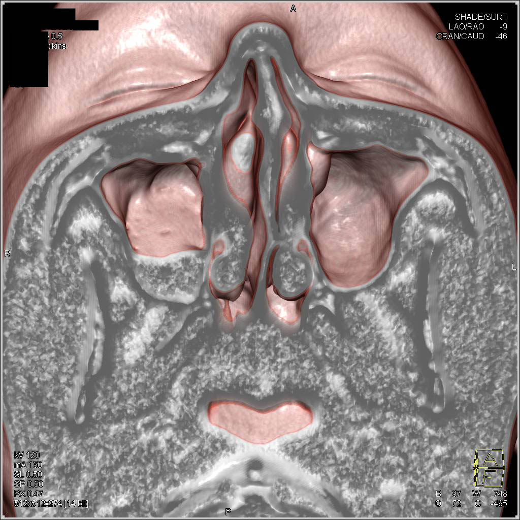 Right Maxillary Sinusitis with Normal Anatomy of the Head and Neck ...
