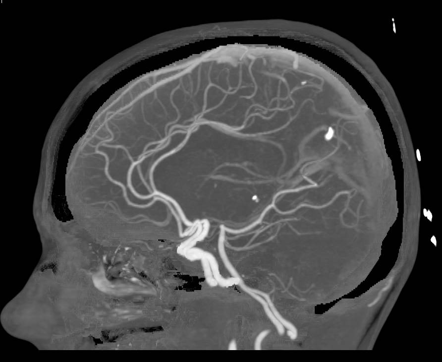 CTA of the Brain with Dual Energy and Bone Removal - Neuro ...