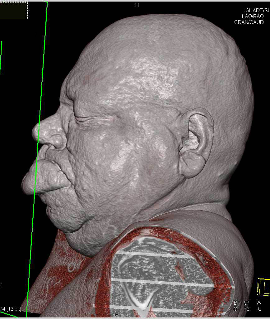 Massively Swollen Head And Neck Region Due To Edema - Neuro Case Studies