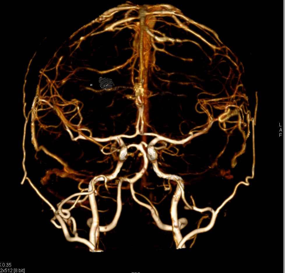 CTA of the Brain with Bone Removal via DE Technique - Neuro Case ...