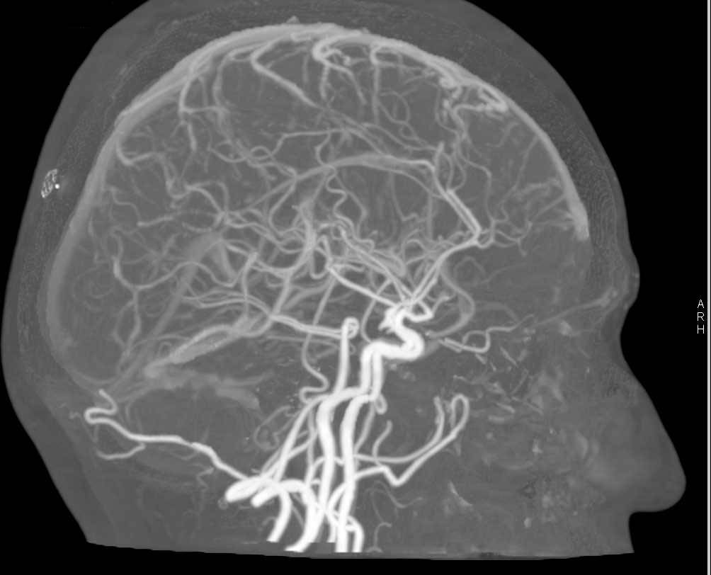 Cta Of The Brain With Bone Removal Via De Technique