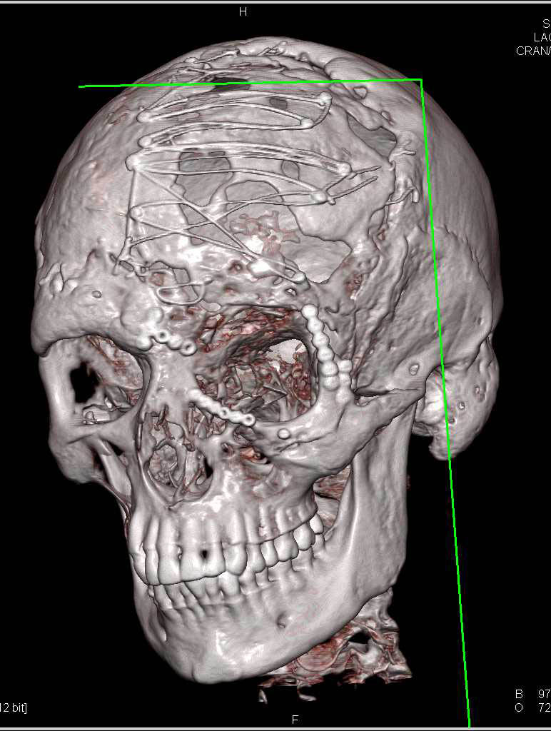 Orbital Fracture with Repair in 3D - Neuro Case Studies - CTisus CT ...
