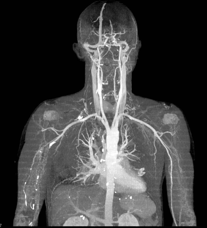 Normal Cta Of The Neck Neuro Case Studies Ctisus Ct