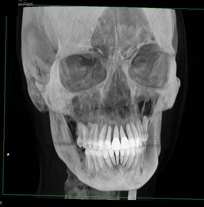 3D VRT of the Skull Without Fracture