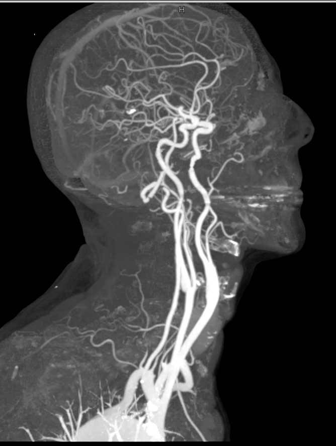Cta Of The Carotid Arteries With Dual Energy