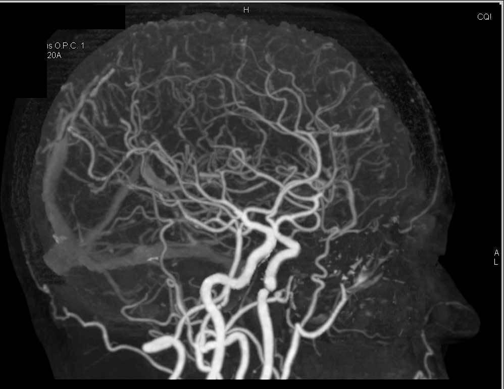 Cta Of The Cow Neuro Case Studies Ctisus Ct Scanning
