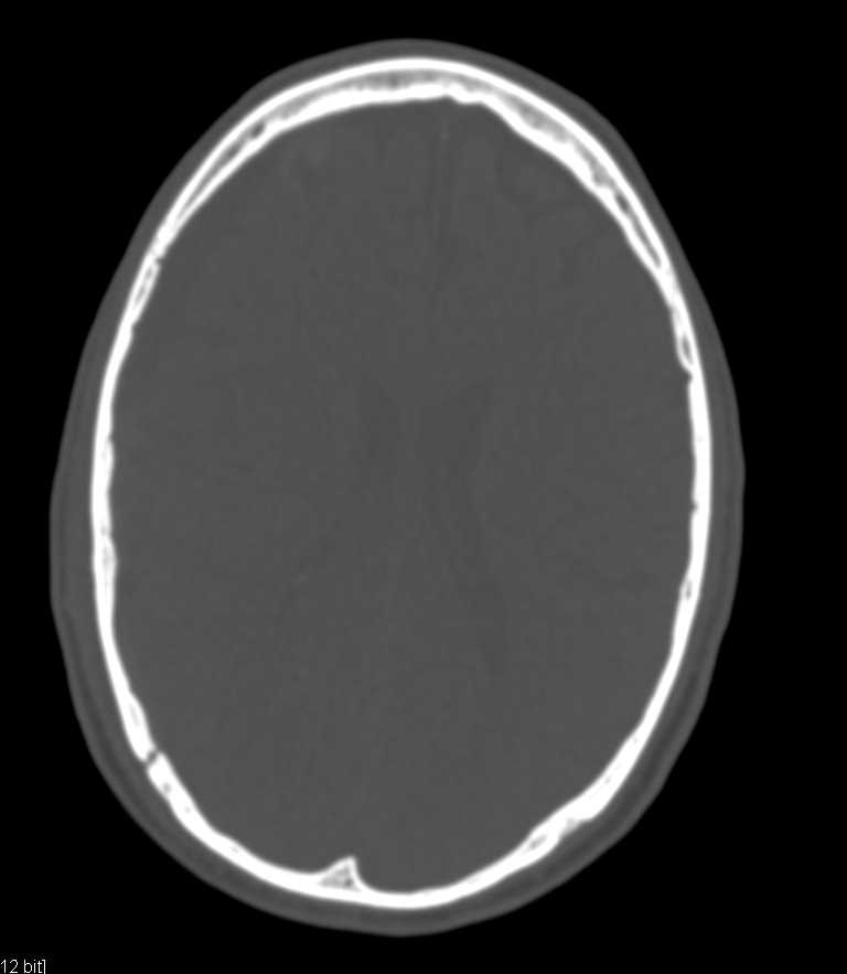 Intracranial Bleed - CTisus CT Scanning
