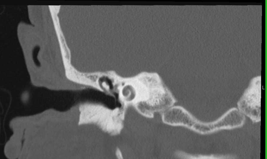 Infection of the Inner Ear - CTisus CT Scanning