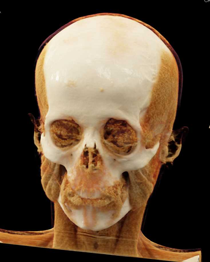 Cinematic Rendering of the Skull and Fascial Bones - CTisus CT Scanning