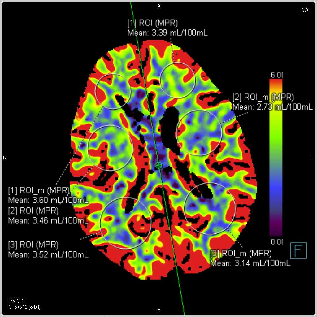 Perfusion CT of the Brain for Stroke - CTisus CT Scanning