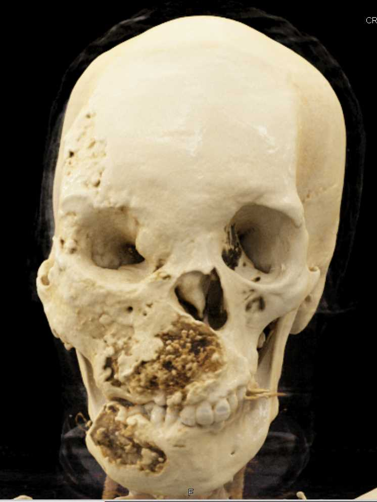 CTisus CT Scanning | Fibrous Dysplasia of the Skull