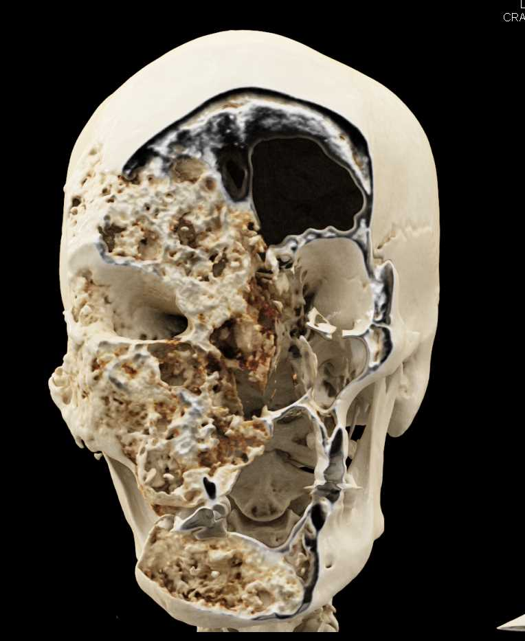 Fibrous Dysplasia of the Skull - CTisus CT Scan