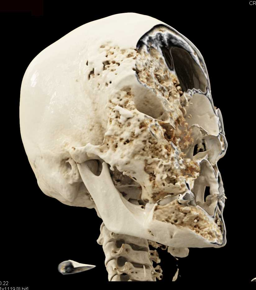 Fibrous Dysplasia of the Skull with Cinematic Rendering - CTisus CT Scan