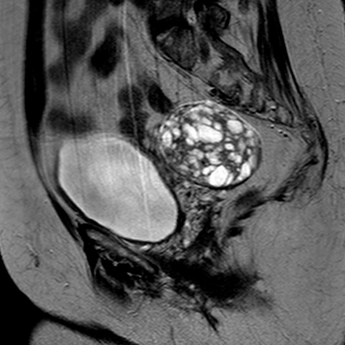 Ovarian Granulosa Cell Tumor  Gyn Case Studies