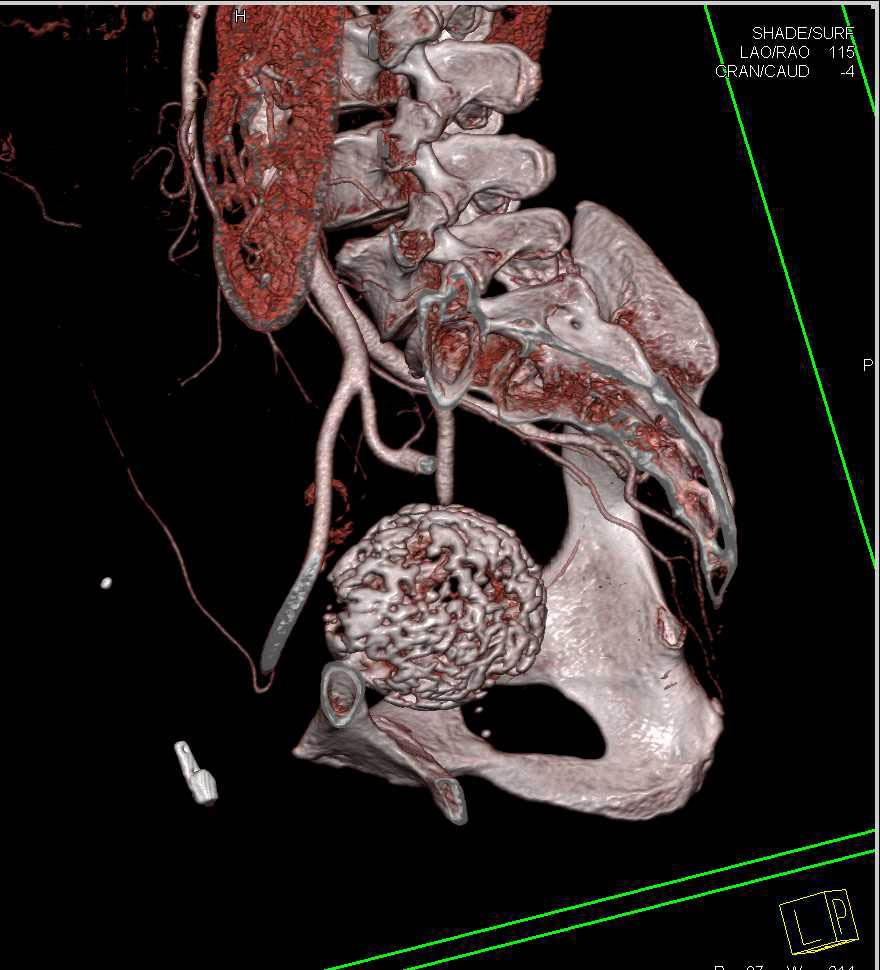 Calcified Uterine Fibroids - CTisus CT Scanning