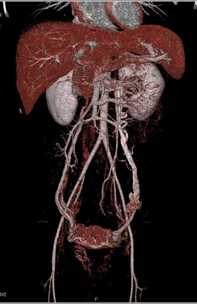 Pelvic Congestion Syndrome with Huge Pelvic Varices and Collaterals - CTisus CT Scanning