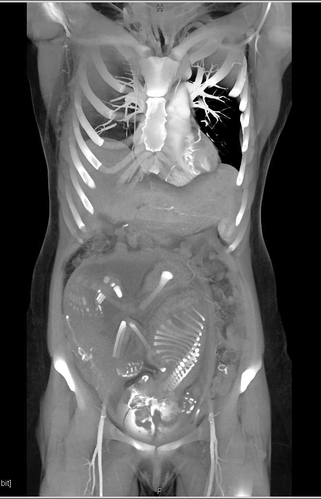 Perfusion Changes in the Fetus in a Patient Post Trauma - CTisus CT Scan