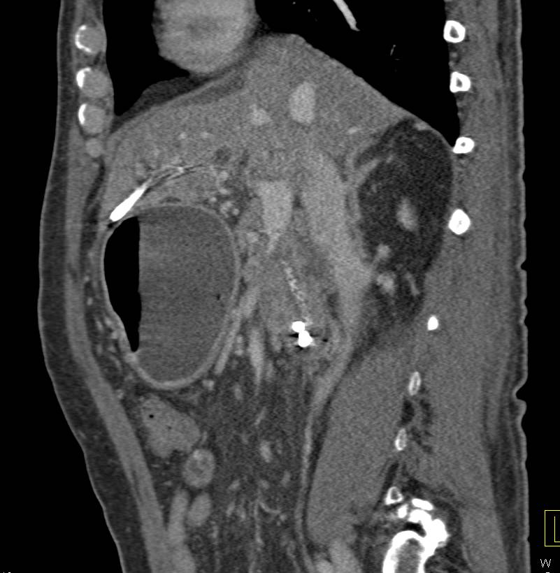 Pancreatic Cancer Obstructs the Duodenum - CTisus CT Scanning