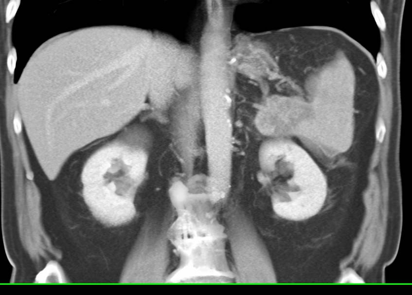 Carcinoma of the Tail of the Pancreas Invades the Spleen with Splenic Infarction Seen