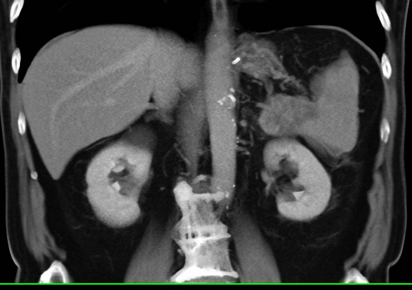 Carcinoma of the Tail of the Pancreas Invades the Spleen with Splenic Infarction Seen - CTisus CT Scanning