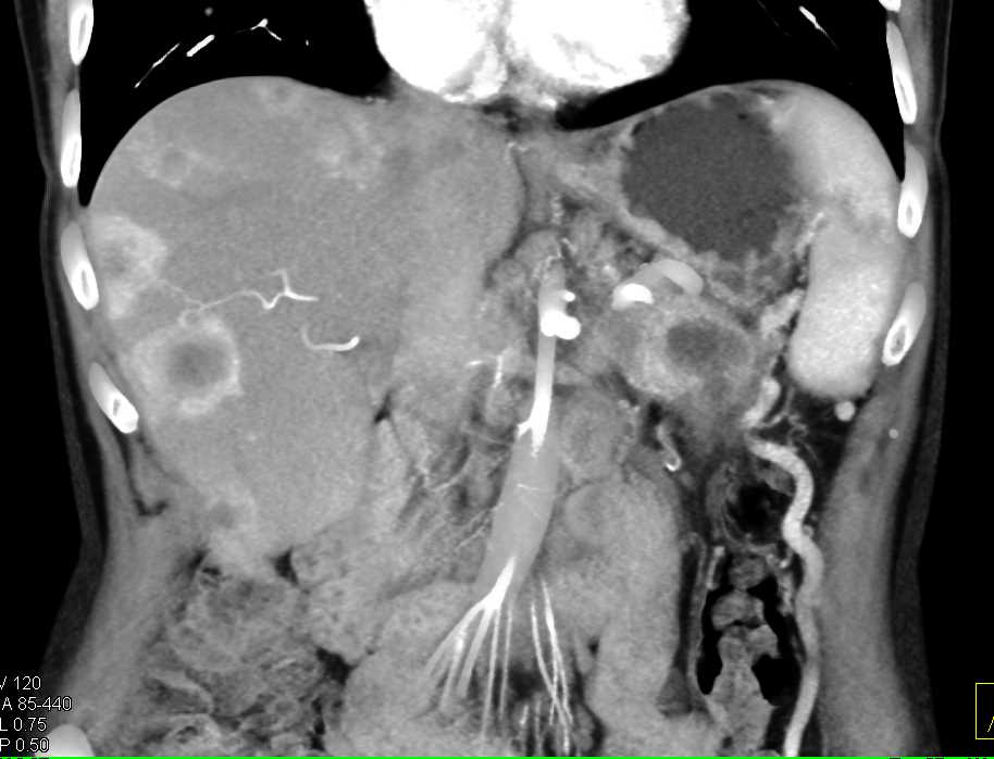 Pancreatic Cancer with Liver Metastases - CTisus CT Scanning