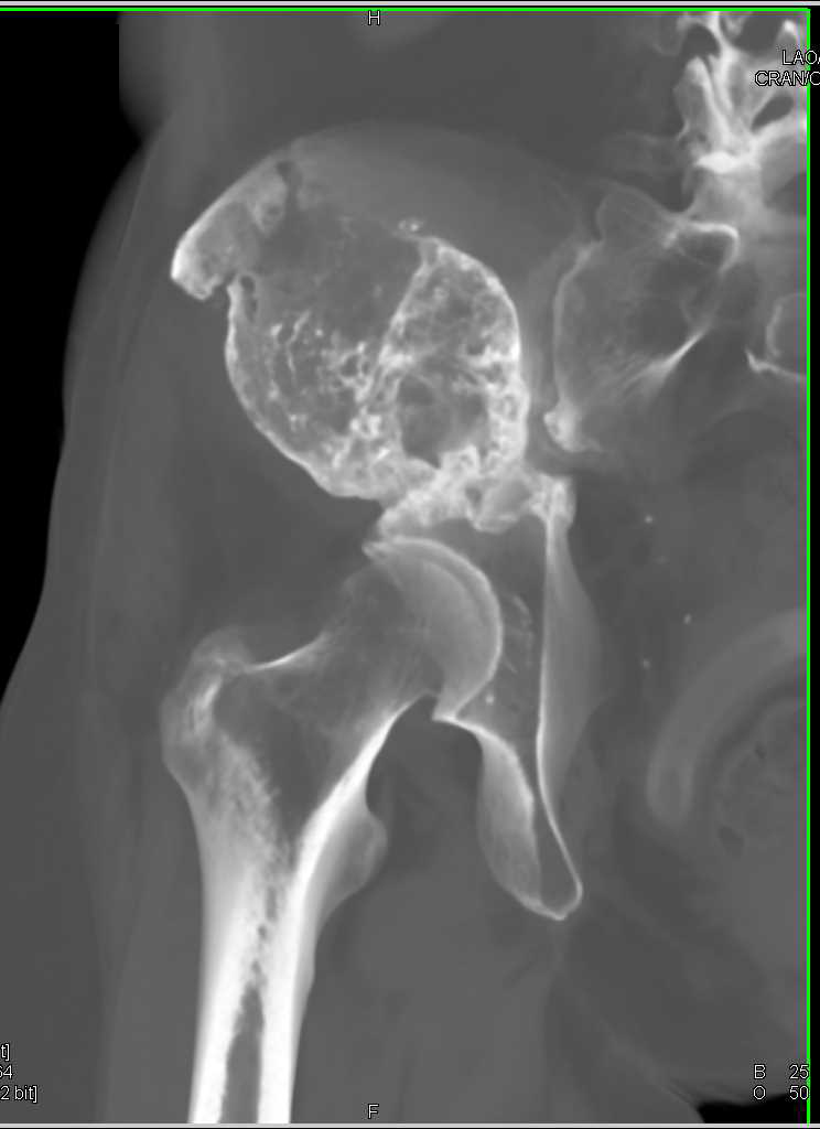 Malignant Giant Cell Tumor Right Iliac Wing - CTisus CT Scanning
