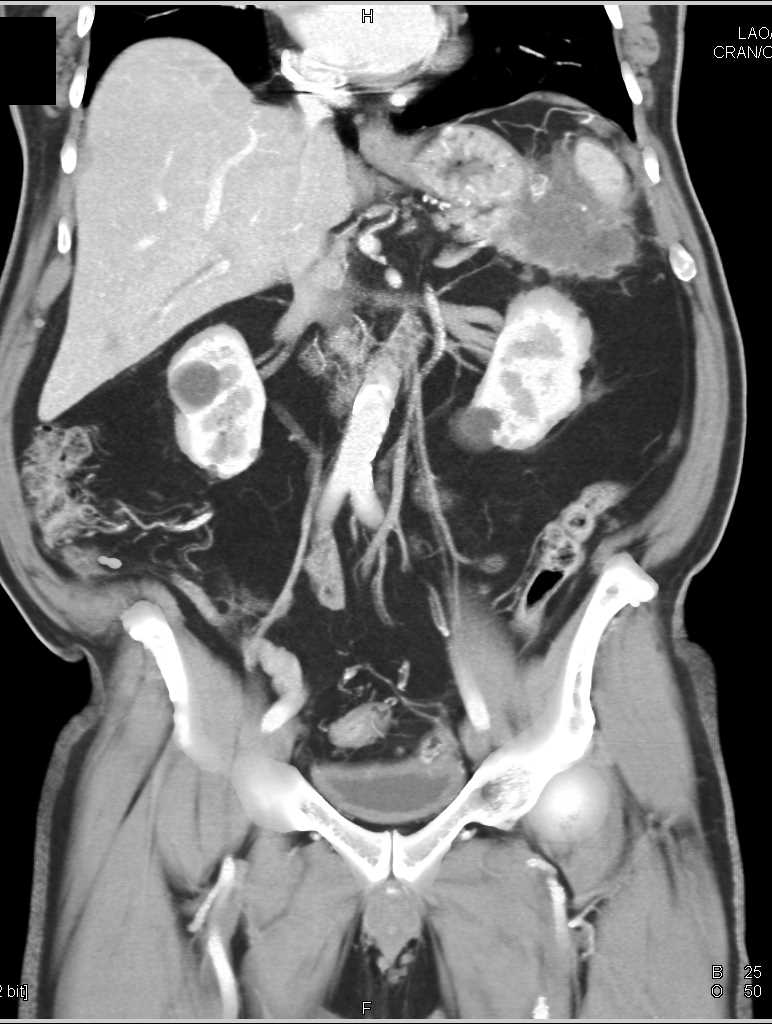 Pancreatic Cancer Invades the Spleen - CTisus CT Scanning