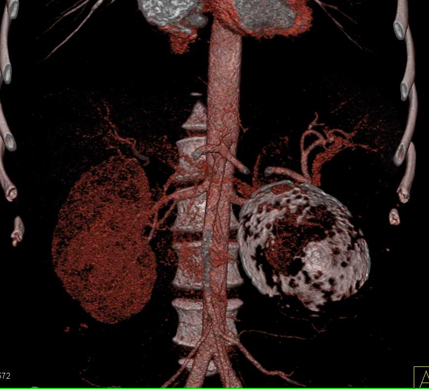Calcified Mesenteric Cyst Involves the Pancreas - CTisus CT Scanning