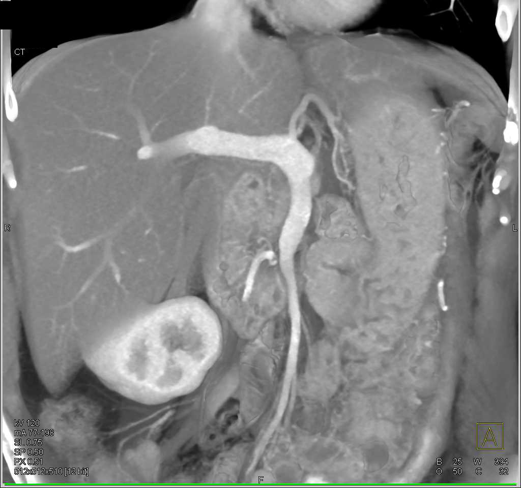 MCN Body of the Pancreas - CTisus CT Scanning
