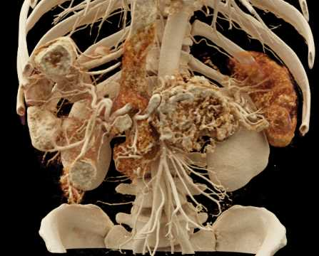 PNET Pancreas and Liver Metastases with Cinematic Rendering - CTisus CT Scanning