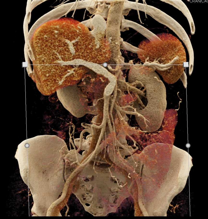 Pancreatic Adenocarcinoma Encases the Portal Vein (PV) and Occludes the Splenic Vein with Cinematic Rendering - CTisus CT Scan