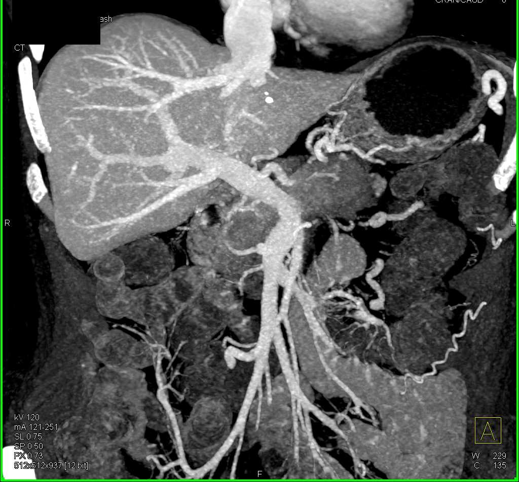 Adenocarcinoma Pancreas with Vessel Encasement - CTisus CT Scan