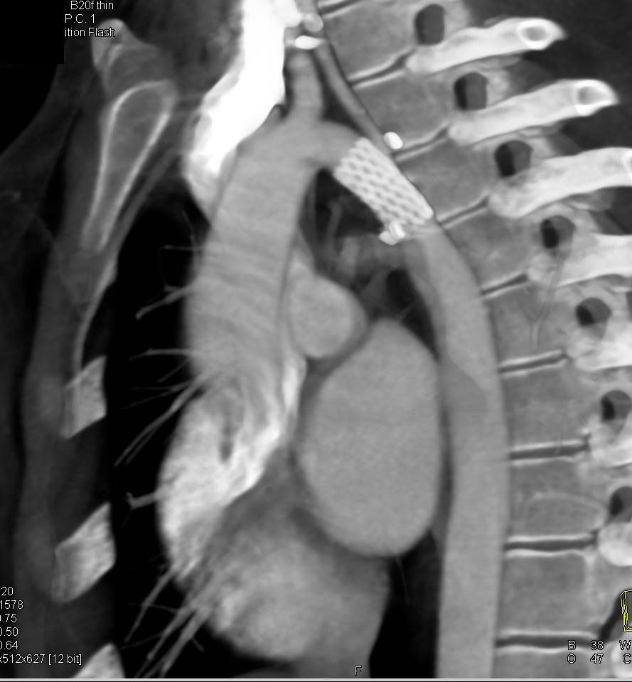 Endovascular Stent Repair of Coarctation of the Aorta - CTisus CT Scanning
