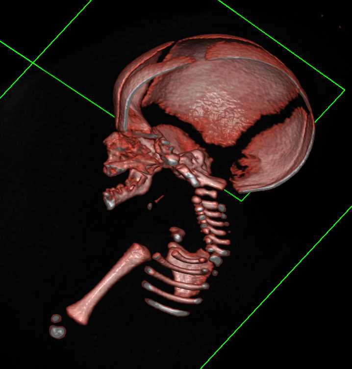 CT Evaluation of Fetus for Suspected Cranial Stenosis - CTisus CT Scanning
