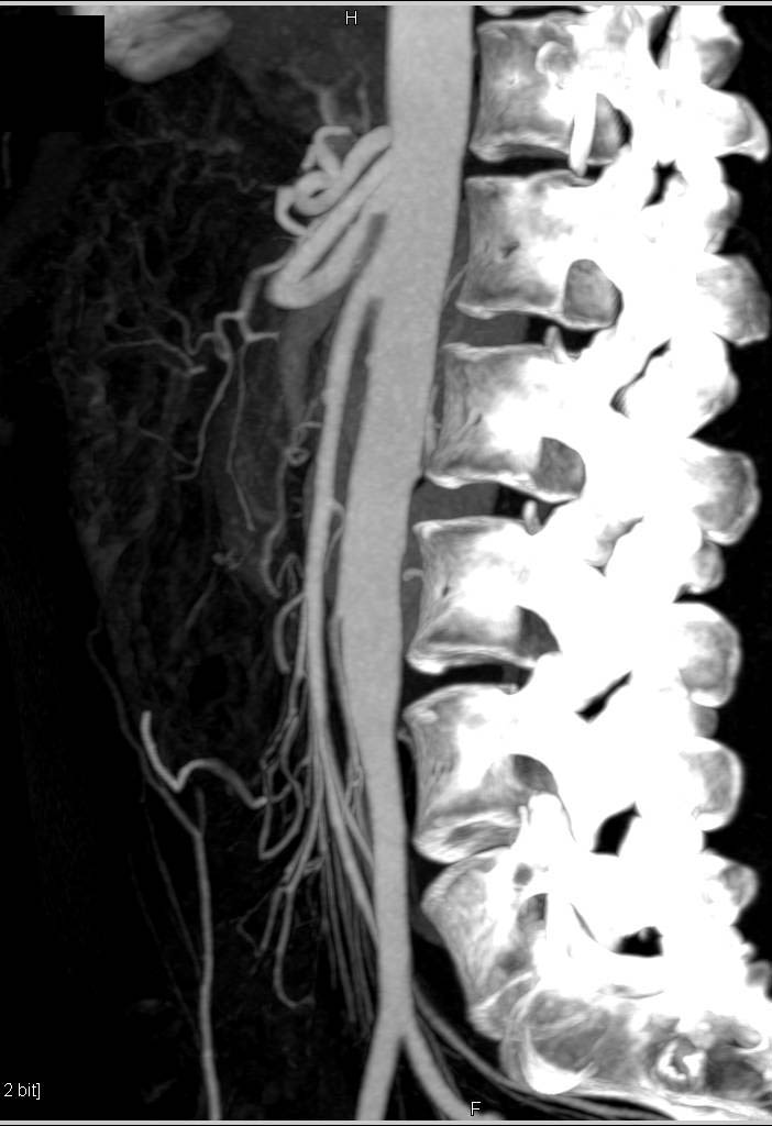SMA Syndrome with Narrow SMA-Aorta Angle