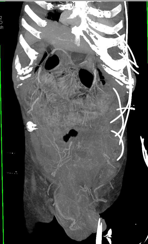 SBO due to Small Bowel into a Incarcerated Inguinal Hernia