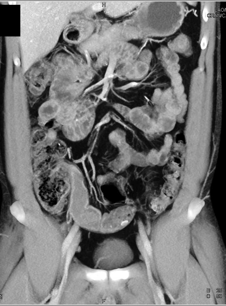 Crohns Disease with Stricture in Distal Ileum
