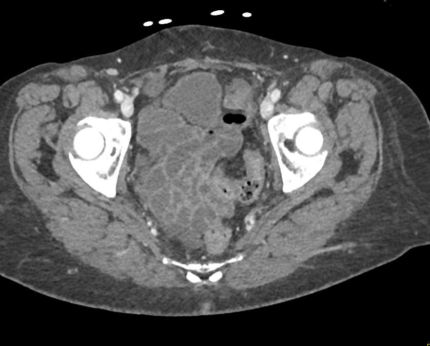 Ischemic Bowel with an Internal Hernia in the Right Lower Quadrant