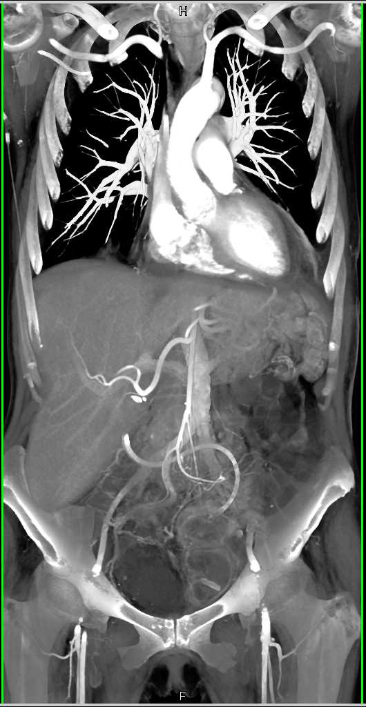 Pneumatosis Small Bowel due to Ischemic and Infarcted Small Bowel