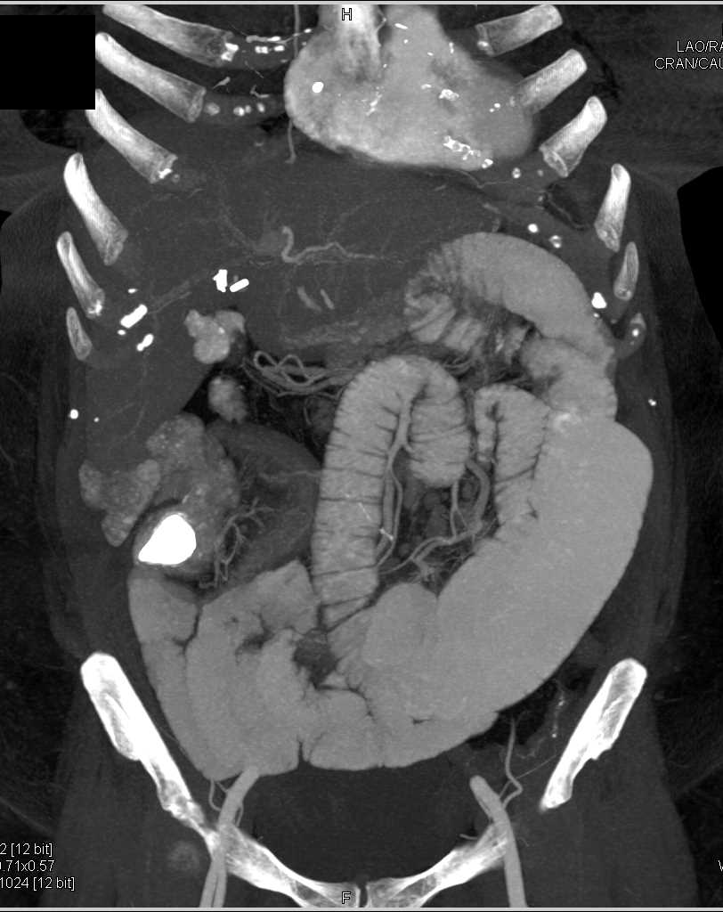 Small Bowel Obstruction due to Crohns Disease - CTisus CT Scanning