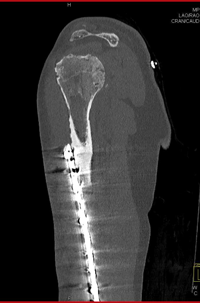 Splenules in Patient with Multiple Prior Fractures and Abdominal Trauma - CTisus CT Scanning