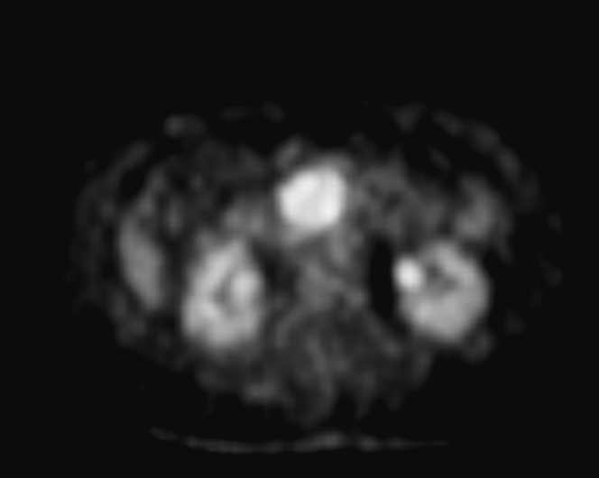 Duodenal Carcinoma on CT and PET - CTisus CT Scanning