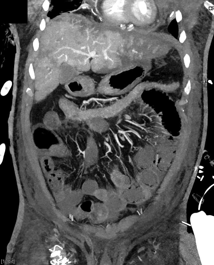 Ischemic Bowel with Pneumatosis, Ascites and Splenic Infarcts in Patient With a Intra-arterial Balloon Pump - CTisus CT Scanning