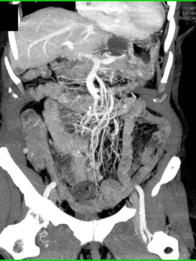 Small Bowel Enteritis - CTisus CT Scanning