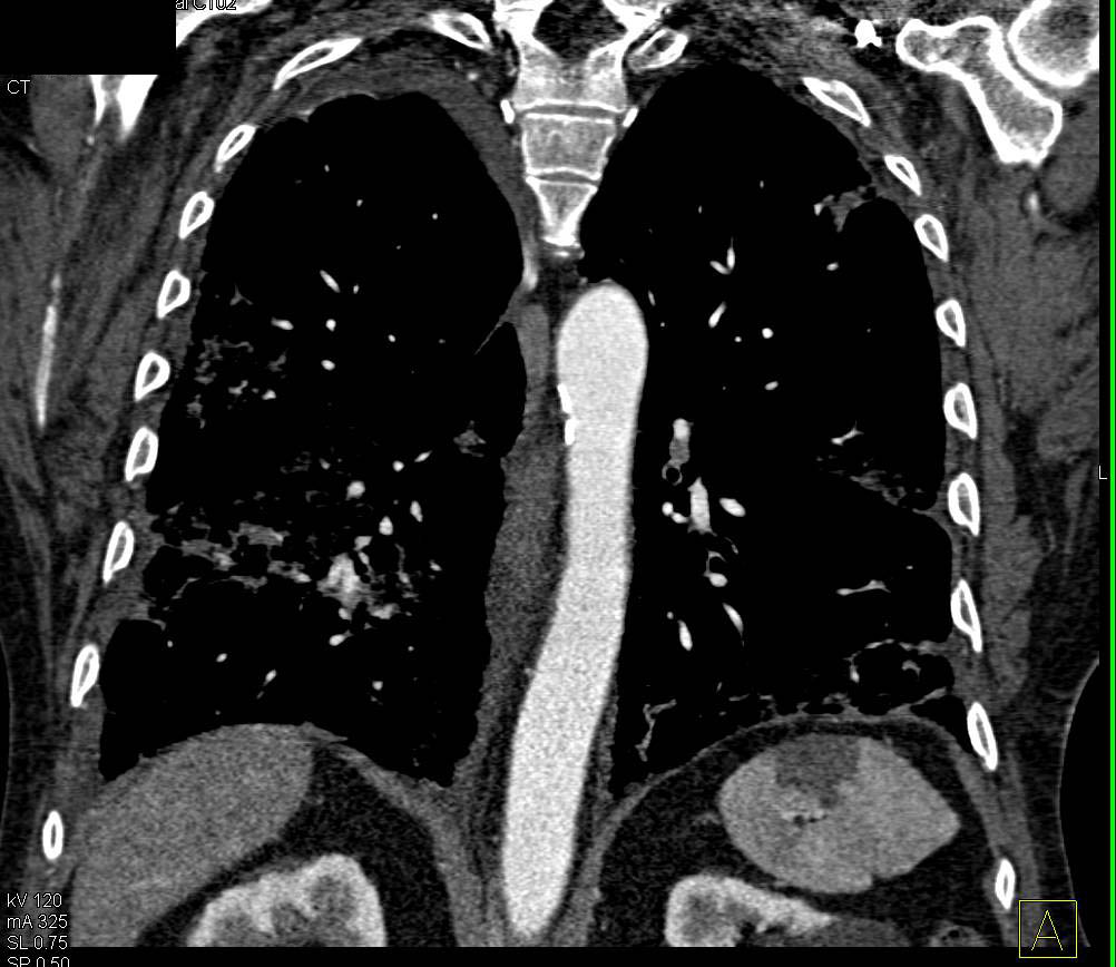 Splenic Infarct