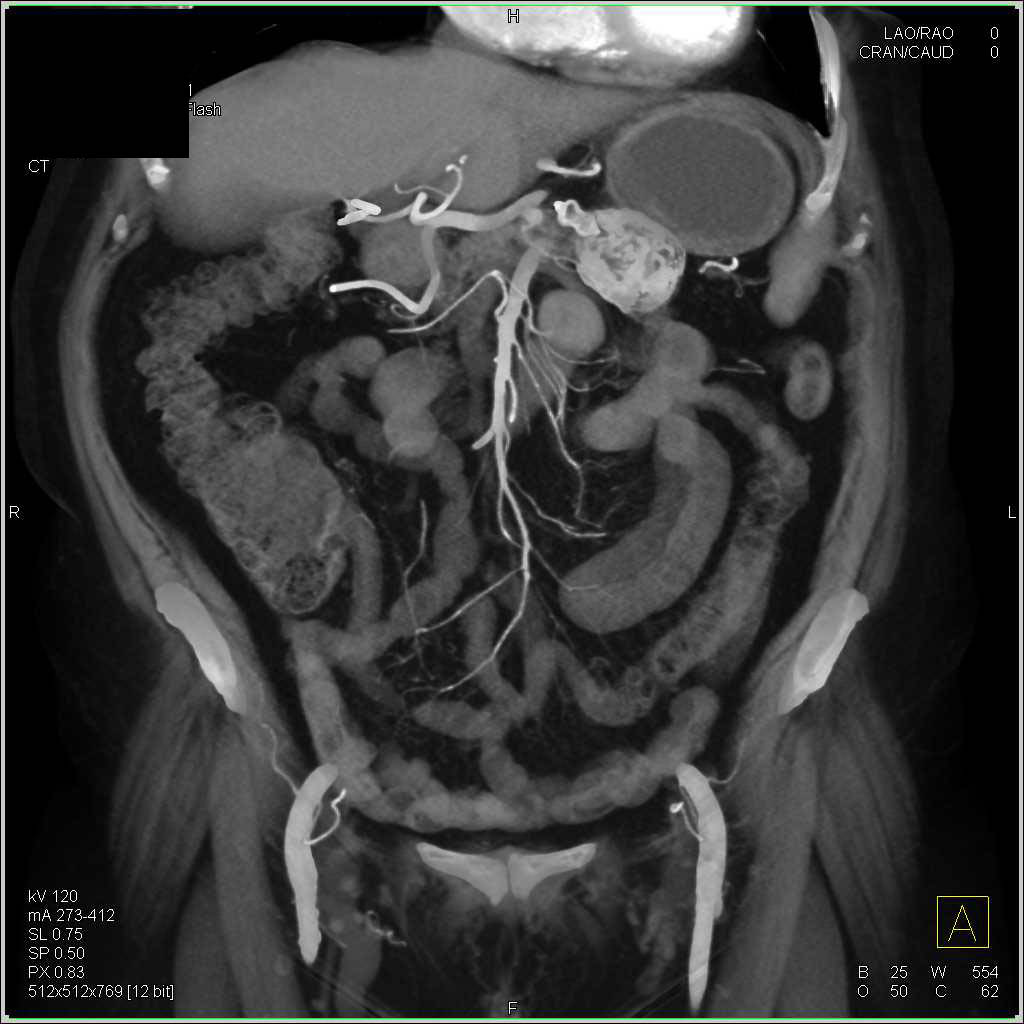 Calcified Splenic Artery Aneurysm - CTisus CT Scan