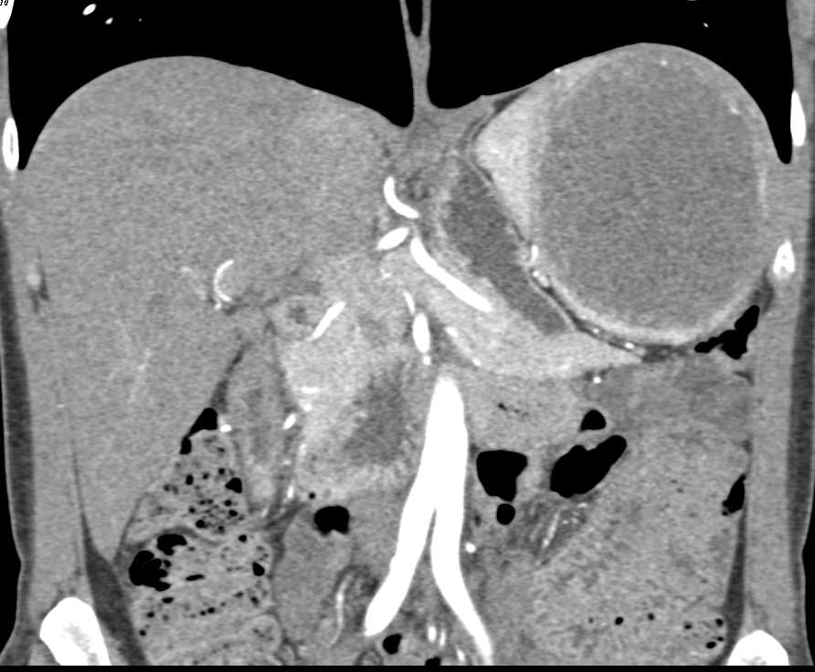 True Splenic Cyst - CTisus CT Scanning