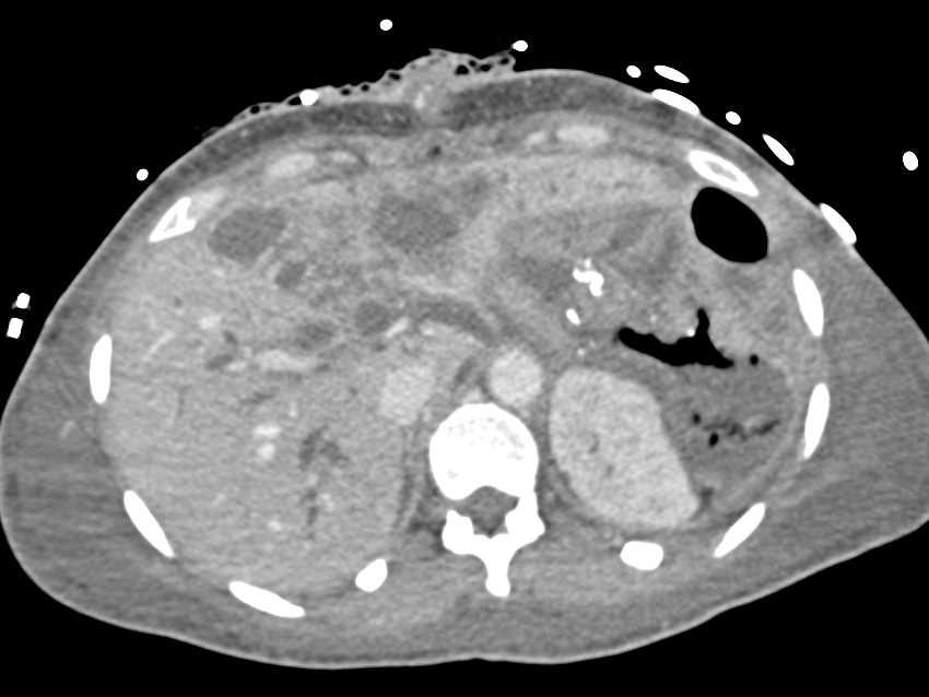 Splenic Infarct and Pneumatosis Left Colon - CTisus CT Scanning